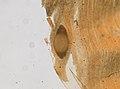 Trichinella spiralis (YPM IZ 095195).jpeg