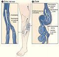 Varicose veins pl.jpg