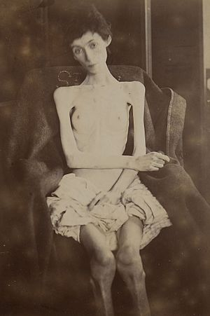 Woman suffering from anorexia nervosa Wellcome L0066994.jpg