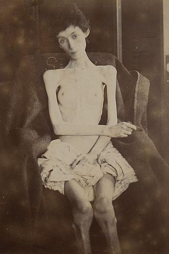 Anorexia (symptom) - An example of severe anorexia (anorexia nervosa).
