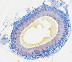 Cross section of an artery.