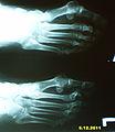 Artroza zgloba.jpg