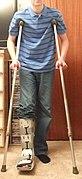 Axillary (underarm) crutches.JPG