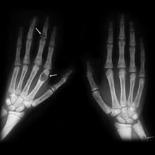 X-ray of two human hands, viewed with the palms facing downwards. Three light-gray malformations can be seen: one is present on the right-side of the right wrist, one is present three-quarters of the way up the middle finger of the left hand, and one is present in the first segment of the index finger of the left hand. White arrows have been added to the image to identify the tumors.