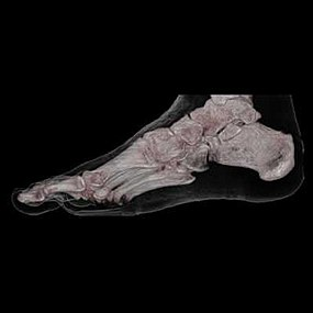 CT 3D human Foot Skin and Bone.jpeg