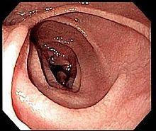 Coeliac Disease Wikipedia