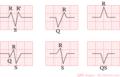 De-Qrs-shapes (CardioNetworks ECGpedia).png