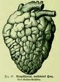 Die Frau als Hausärztin (1911) 047 Vergrößertes verfettetes Herz.png
