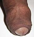 Foreskin of a human penis.jpg