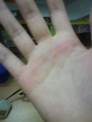 A picture showing the marks left on a Malaysian female student's palm after a caning Hand caning.jpg