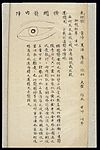 Illustration from Ming Chinese ophthalmology text, Ms copy Wellcome L0039700.jpg