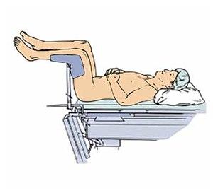 Lithotomy position - Lithotomy position.