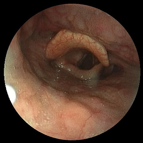 Image Gallery Normal Epiglottis