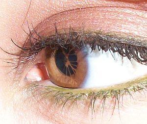 Membrana pupillare persistente - Fireinthexdisco.jpg