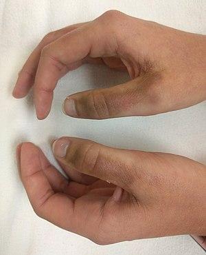 Dyshidrotic eczema wiki