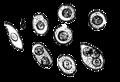 Plasmocytom-dalrymple.PNG