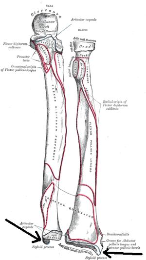 Ulnar styloid process - Bones of left forearm seen from front (ulnar styloid process labeled at bottom left)