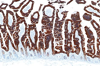Keratin 20 - Micrograph showing CK20 immunostaining of normal small intestine.