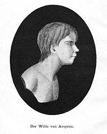 Oval head and shoulders side portrait of a boy without clothes. He has a medium length hair cut long at the neck, a receding chin, and gazes calmly ahead.