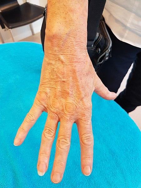 File:Vitiligo na dermatografie behandeling.jpg