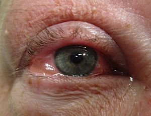 mast cell activation syndrome dry eyes