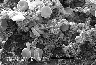 Cell biology - Electron micrograph of blood cells clotting.