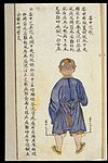C19 Chinese MS moxibustion point chart; Weizhong Wellcome L0039492.jpg