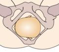 Cephalic presentation - left occipito-transverse.png