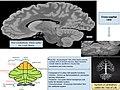 Cerebellum Infographic.jpg