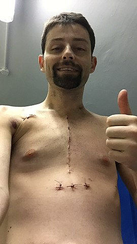 Chest scar after heart transplant harefield hospital 21 october 2018 4.jpg