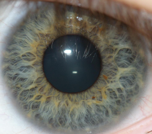 Iris recognition - Iris recognition biometric systems apply mathematical pattern-recognition techniques to images of the irises of an individual's eyes.