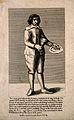Francesco Battaglia, a stone eating boy. Line engraving, 179 Wellcome V0006977.jpg