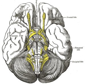 Tuber cinereum hamartoma - The mass is usually located at the tuber cinereum of the hypothalamus.