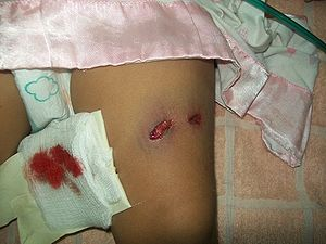 Gunshot wound to the left thigh showing entry ...