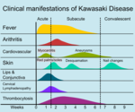 Kawasakidiseasemanifestations.png