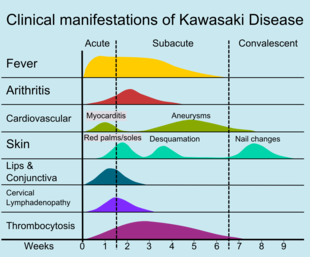 Signs Of Kawasaki Disease In Adults