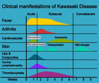 kawasaki disease - wikipedia, Skeleton