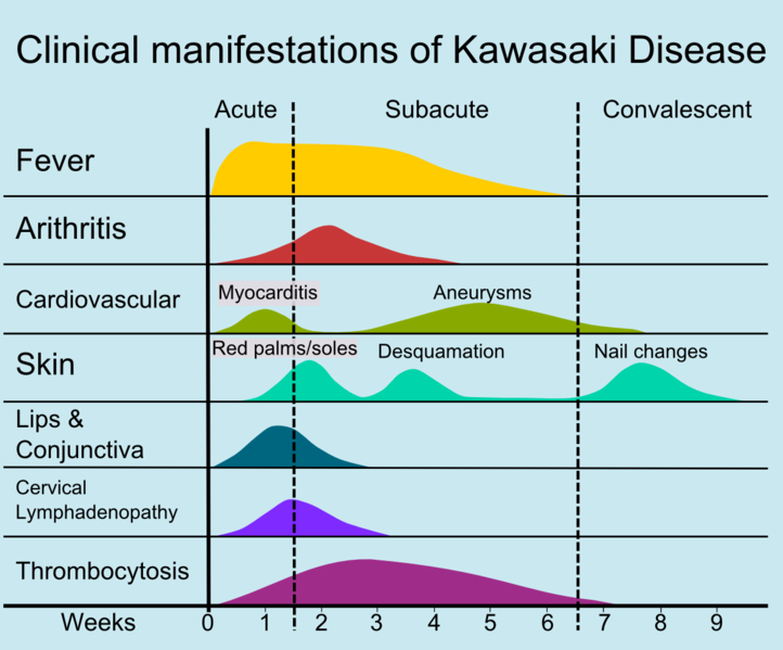 Kawasaki Disease Long Term Complications