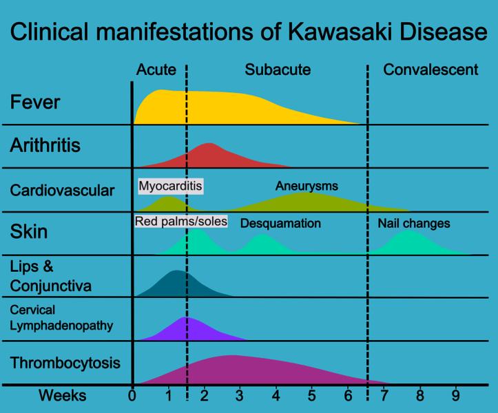 Kawasaki Disease Neurological Complications