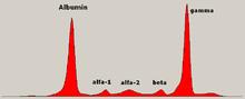 Tipico picco monoclonale delle gammaglobuline nell'elettroferesi delle sieroproteine in caso di mieloma multiplo