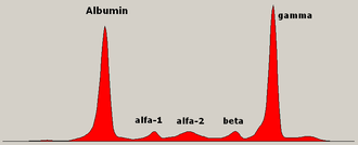 Myeloma protein - Serum protein electrophoresis showing a paraprotein (spike/peak in the gamma zone) in a patient with multiple myeloma.