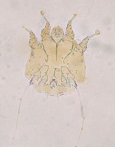 Parasitic Insects Mites And Ticks Genera Of Medical And