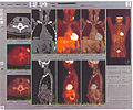 PET scan image.jpg