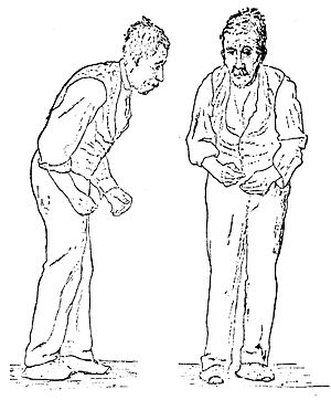 Two sketches (one from the front and one from the right side) of a man, with an expressionless face. He is stooped forward and is presumably having difficulty walking.
