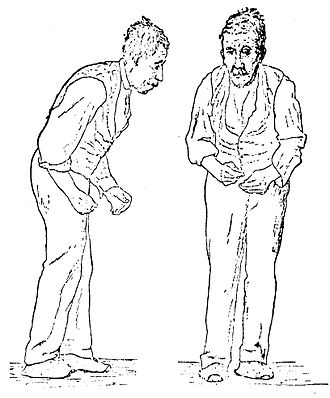 Parkinsonian gait - Image: Sir William Richard Gowers Parkinson Disease sketch 1886