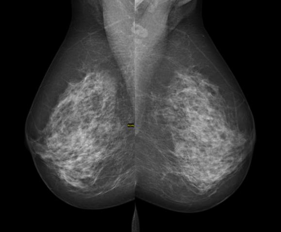 breast cancer screening guidelines racgp