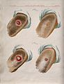 A comparison between smallpox and cowpox pustules on the 6th Wellcome V0016671.jpg