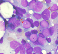 Bone marrow aspirate showing acute myeloid leu...
