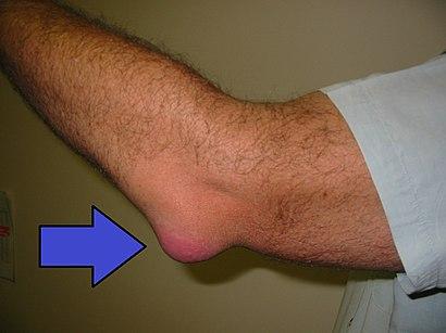 Bursitis Elbow WCArrow.jpg