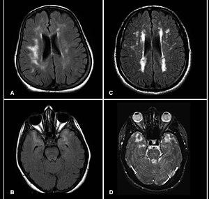 Hyperintensity - MRI scans showing hyperintensities
